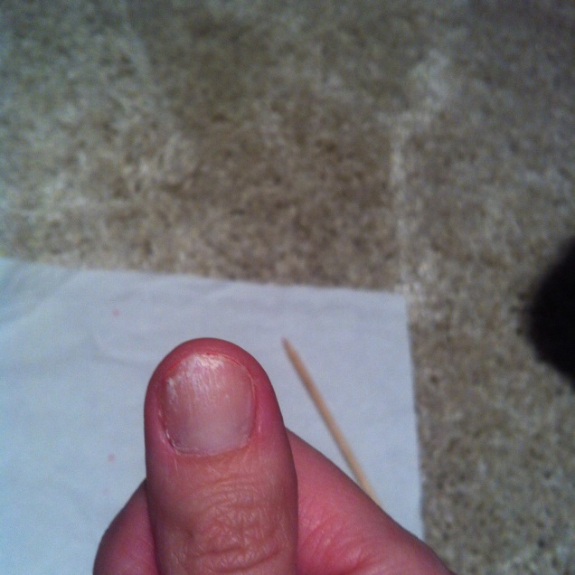 Až na palec, který jsem bohužel zapékala dvakrát...
